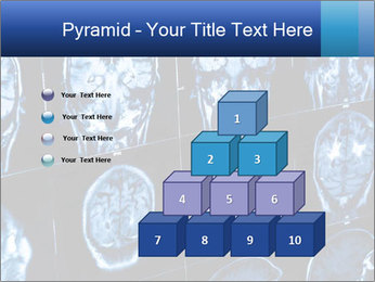 X-rays PowerPoint Template - Slide 31