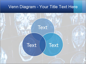 X-rays PowerPoint Template - Slide 33