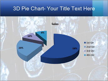 X-rays PowerPoint Template - Slide 35