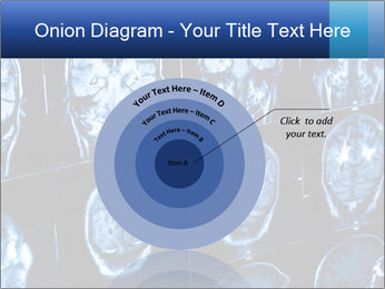 X-rays PowerPoint Template - Slide 61