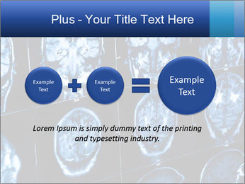 X-rays PowerPoint Template - Slide 75
