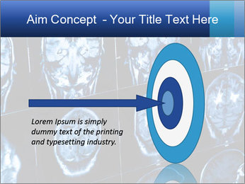 X-rays PowerPoint Template - Slide 83
