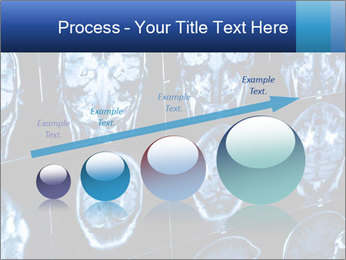 X-rays PowerPoint Template - Slide 87