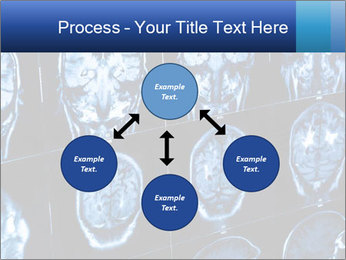 X-rays PowerPoint Template - Slide 91