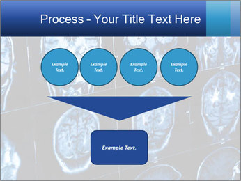 X-rays PowerPoint Template - Slide 93