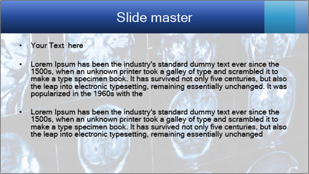 X-rays PowerPoint Template - Slide 2
