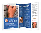 0000090420 Brochure Templates