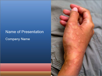 Bad Skin Condition PowerPoint Template - Slide 1