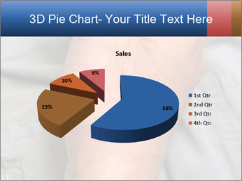 Bad Skin Condition PowerPoint Template - Slide 35