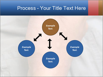 Bad Skin Condition PowerPoint Template - Slide 91