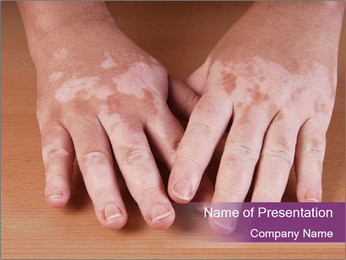 Skin Pigment PowerPoint Template - Slide 1
