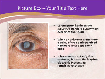 Close up of the follicular injection PowerPoint Template - Slide 13