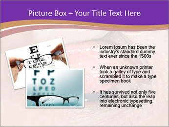Close up of the follicular injection PowerPoint Template - Slide 20