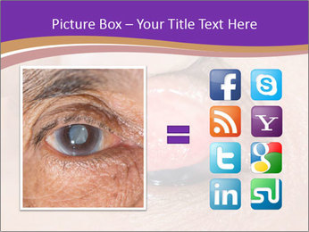 Close up of the follicular injection PowerPoint Template - Slide 21