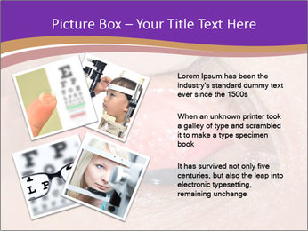 Close up of the follicular injection PowerPoint Template - Slide 23