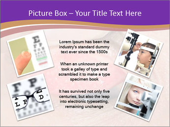 Close up of the follicular injection PowerPoint Templates - Slide 24