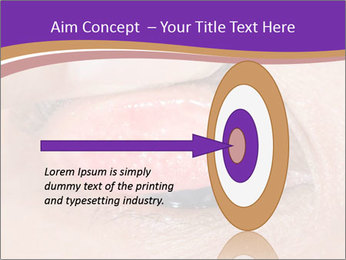 Close up of the follicular injection PowerPoint Templates - Slide 83