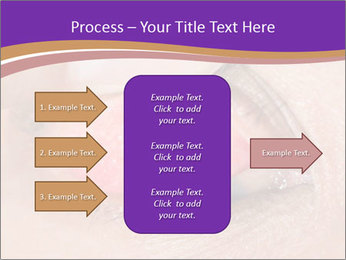 Close up of the follicular injection PowerPoint Templates - Slide 85