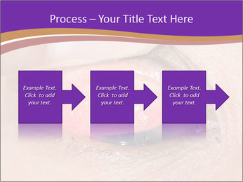 Close up of the follicular injection PowerPoint Templates - Slide 88
