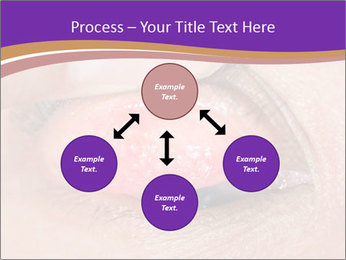 Close up of the follicular injection PowerPoint Templates - Slide 91