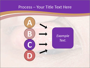 Close up of the follicular injection PowerPoint Templates - Slide 94