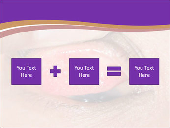 Close up of the follicular injection PowerPoint Template - Slide 95