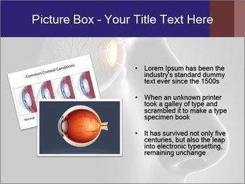 Eye Treatment PowerPoint Templates - Slide 20