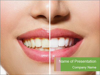 Teeth Before And After PowerPoint Template - Slide 1