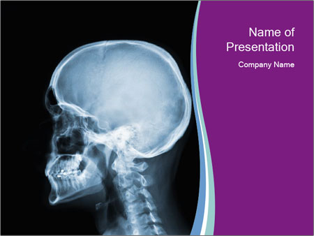 X-ray of head PowerPoint Templates