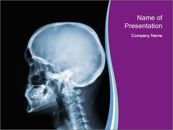 X-ray of head PowerPoint Template - Slide 1
