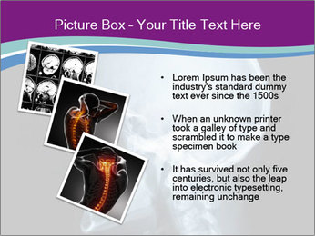 X-ray of head PowerPoint Template - Slide 17