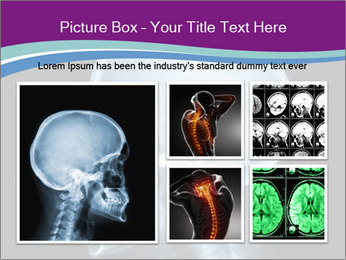 X-ray of head PowerPoint Template - Slide 19