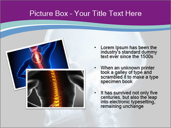 X-ray of head PowerPoint Template - Slide 20