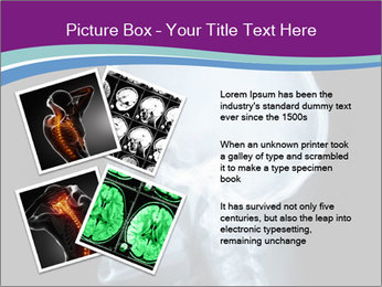 X-ray of head PowerPoint Template - Slide 23