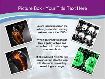 X-ray of head PowerPoint Template - Slide 24