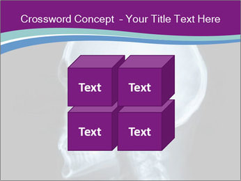 X-ray of head PowerPoint Template - Slide 39