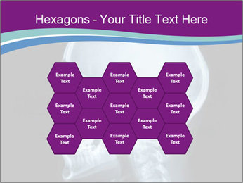 X-ray of head PowerPoint Template - Slide 44