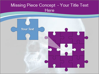 X-ray of head PowerPoint Template - Slide 45