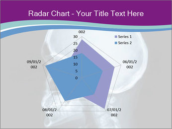X-ray of head PowerPoint Template - Slide 51