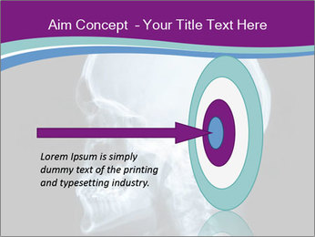 X-ray of head PowerPoint Template - Slide 83