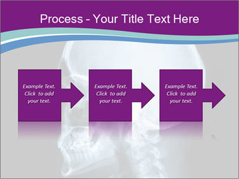 X-ray of head PowerPoint Template - Slide 88