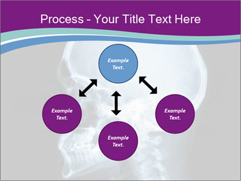 X-ray of head PowerPoint Template - Slide 91