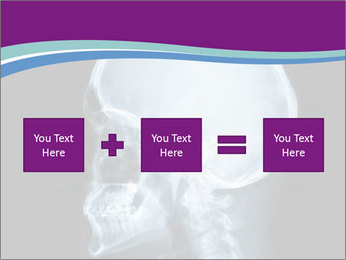 X-ray of head PowerPoint Template - Slide 95