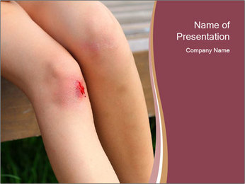 Scraped knee PowerPoint Template