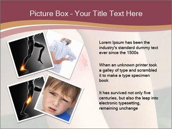 Scraped knee PowerPoint Template - Slide 23