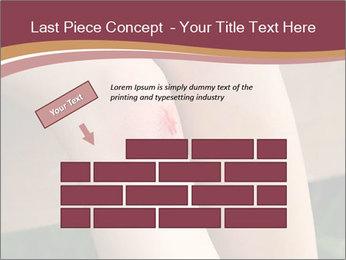 Scraped knee PowerPoint Template - Slide 46