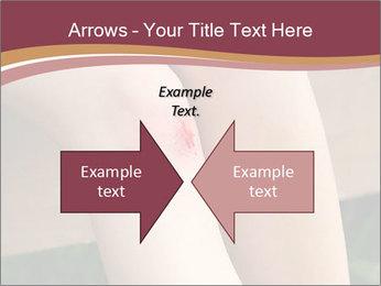 Scraped knee PowerPoint Template - Slide 90