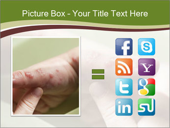 Blisters caused PowerPoint Template - Slide 21