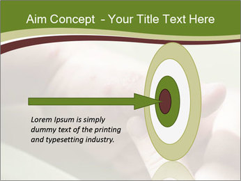 Blisters caused PowerPoint Template - Slide 83