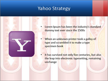 Vienna human atherosclerosis PowerPoint Template - Slide 11